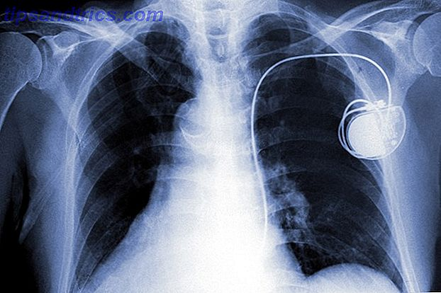 pacemaker-x-ray